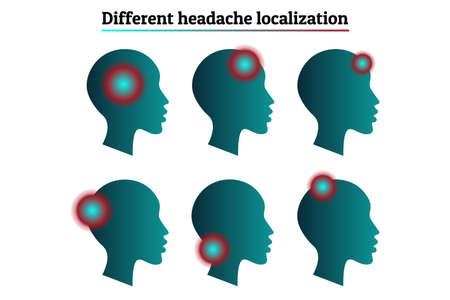 Ensemble de modèles d'infographie médicale - types et localisations de maux de tête, migraine. Silhouette de tête humaine avec marque de signe de localisation de la douleur. Fond blanc. Pour affiche, présentation, brochure Vecteurs