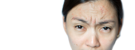 Asian woman have problem acne skin.