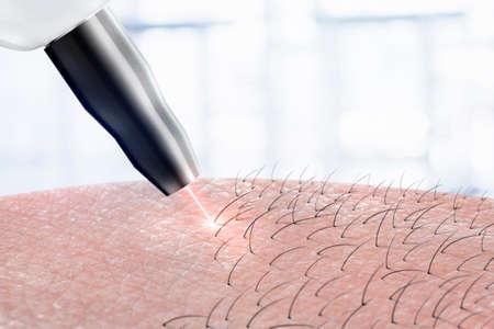 procedimiento de cosmetología depilación láser en partes del cuerpo. Depilación láser. Foto de archivo