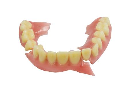prothèse dentaire: Dentier brisé isoler sur fond blanc