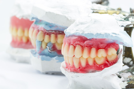 surrogate: Wax denture,dental models showing different types