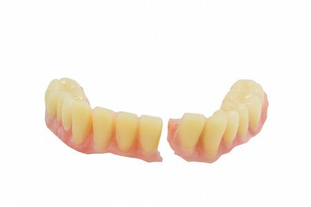 Broken denture Standard-Bild