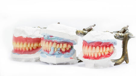 surrogate: Wax denture,dental models showing different types on white background