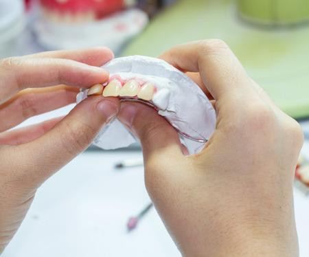 caries dental: Mano de la mujer de la dentadura Marca con la herramienta Foto de archivo
