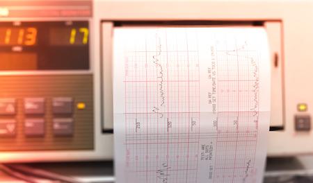 sala parto: La stampa del rapporto cardiogramma che esce dal elettrocardiografo iin sala parto