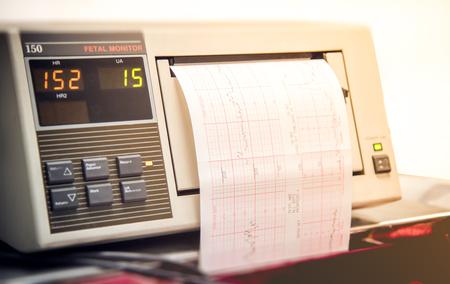 sala parto: Primo piano di stampa monitor sala parto monitoraggio bambino battito cardiaco e le contrazioni Archivio Fotografico