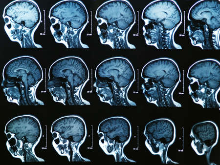 cat scan: MRI scan of the human brain
