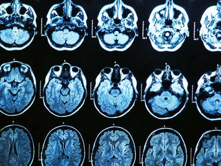 MRI scan of the human brain Stock Photo - 17315744