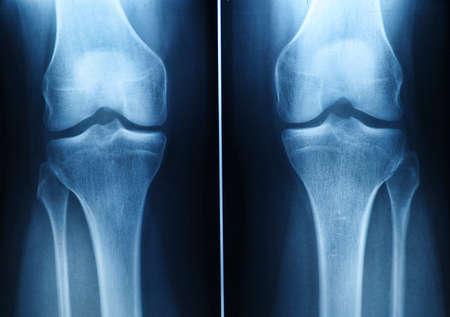 x-ray film of knee