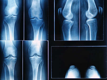 x-ray film of knee Stock Photo - 17339014