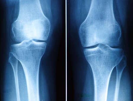 un film radiographique de genou