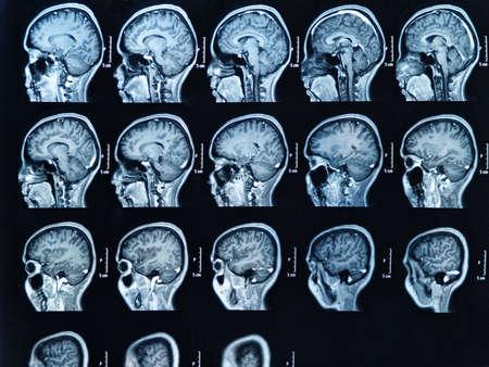 IRM du cerveau humain Banque d'images