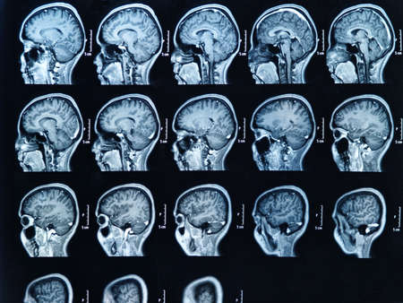 MRI scan of the human brain Stock Photo - 17457012