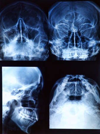 Radiograf�a de cr�neo humano / Jefe Foto de archivo - 17962781