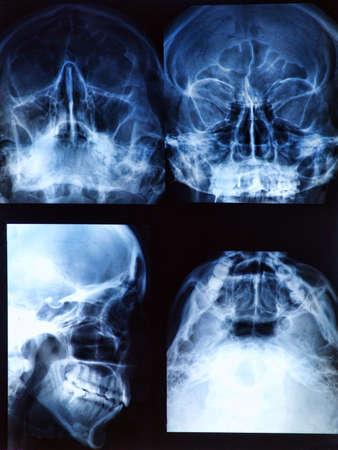 Radiografía de cráneo humano / Jefe Foto de archivo - 17962781