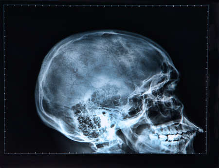 Xray of human Skull   Head photo