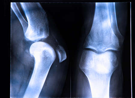 luxacion: Rotura del ligamento cruzado anterior visto en la radiografía