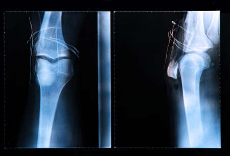 Knee X-ray after surgery for Anterior cruciate ligament injury