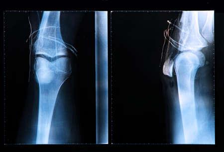 luxacion: Radiografía de la rodilla después de la cirugía para lesiones del ligamento cruzado anterior Foto de archivo