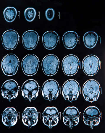 MRI scan of the human brain Stock Photo - 19014779