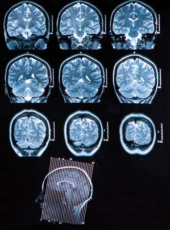 MRI scan of the human brain photo