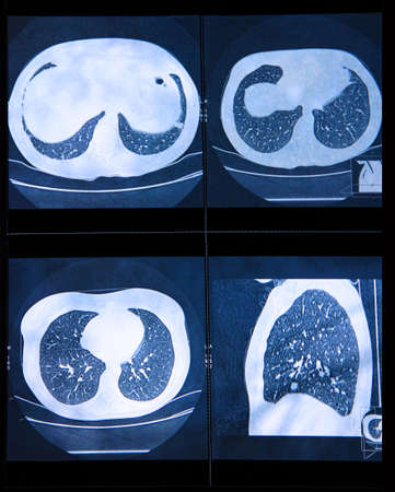 Magnetic resonanse image of chest