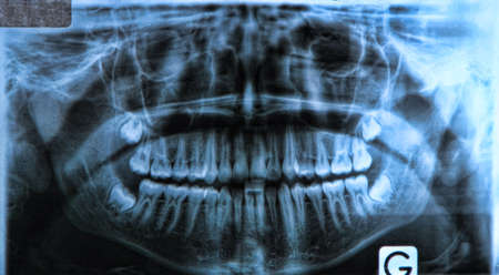 impacted: panoramic x-ray of a mouth, with intact wisdom teeth