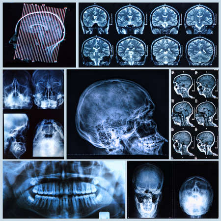 X-ray, tomography and MRI scans of the Human head photo