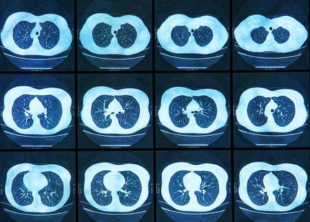 Magnetic resonanse image of chest  photo