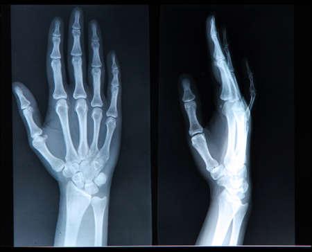 luxacion: Radiograf?a de la mano  dedos humanos Foto de archivo