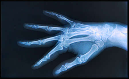 dislocation: X-ray of human  Hand and fingers