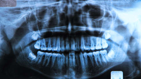 panoramic x-ray of a mouth, with intact wisdom teeth:  Panoramic radiography, also called panoramic x-ray, is a two-dimensional (2-D) dental x-ray examination that captures the entire mouth in a single image, including the teeth, upper and lower jaws, sur photo