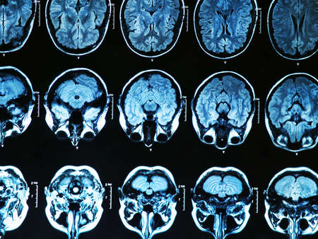 人間の脳の MRI スキャン