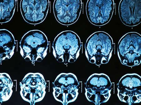 Imagen de resonancia magn?tica del cerebro humano Foto de archivo - 20498590