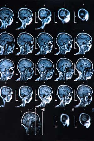 frontal lobe: MRI scan of the human brain