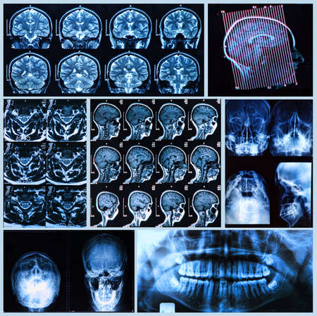 frontal lobe: X-ray, tomography and MRI scans of the Human head