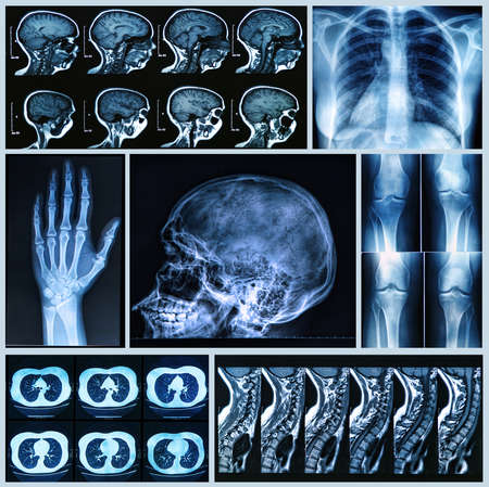 Radiographie d'ossements humains � rayons X et IRM Banque d'images