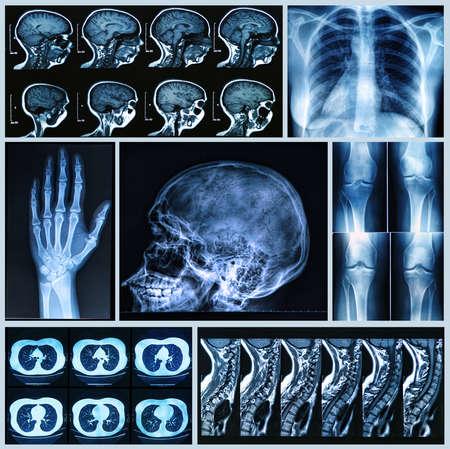 Radiography of Human Bones  x-ray and MRI scans Stock Photo - 24061727