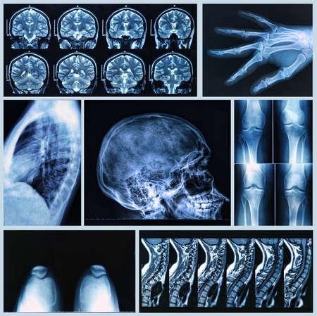 Radiographie des os humains: x-ray et les examens par IRM