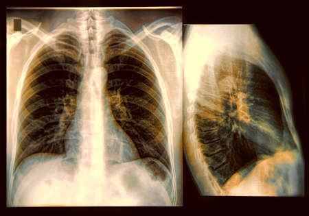 X-Ray image of the human chest photo