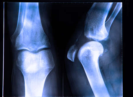 anterior: Anterior cruciate ligament tear seen on x-ray