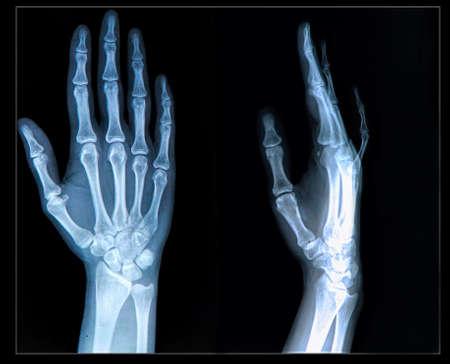 luxacion: Radiograf�a de la mano  dedos humanos