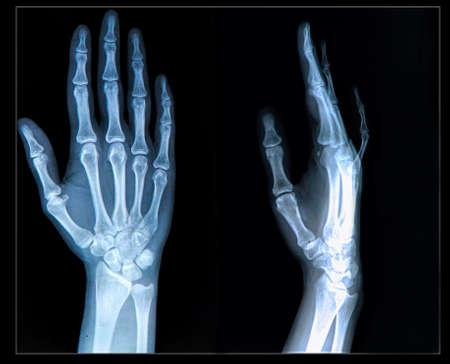 Xray of human  Hand fingers Stock Photo