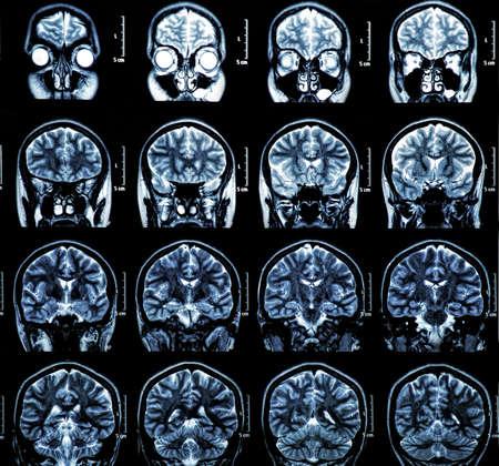 MRI scan of the human brain photo