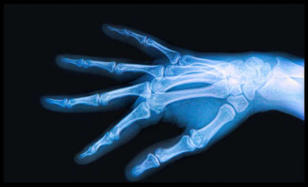 thumb x ray: X-ray of human  Hand and fingers
