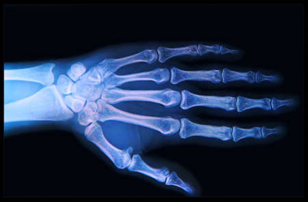 X-ray of human  Hand and fingers photo