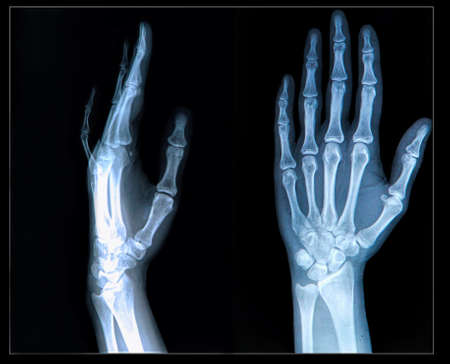 Xray of human  Hand  fingers photo