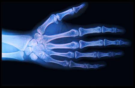 luxacion: Radiograf�a de la mano humana y los dedos