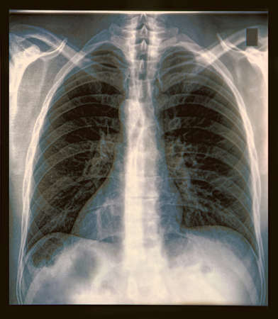 X-Ray image if the human chest photo