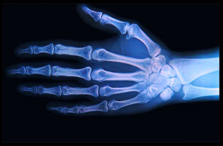 phalanges: X-ray of human  Hand and fingers